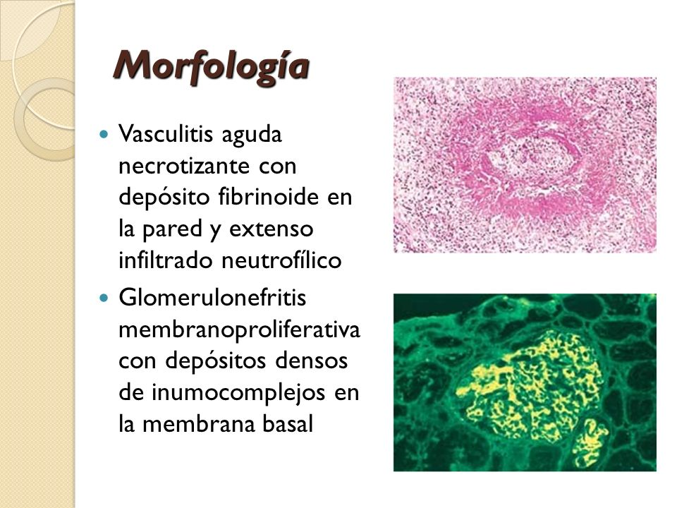 Morfología Vasculitis aguda necrotizante con depósito fibrinoide en la pared y extenso infiltrado neutrofílico.