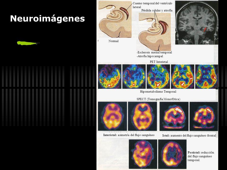 Neuroimágenes Cuerno temporal del ventrículo lateral