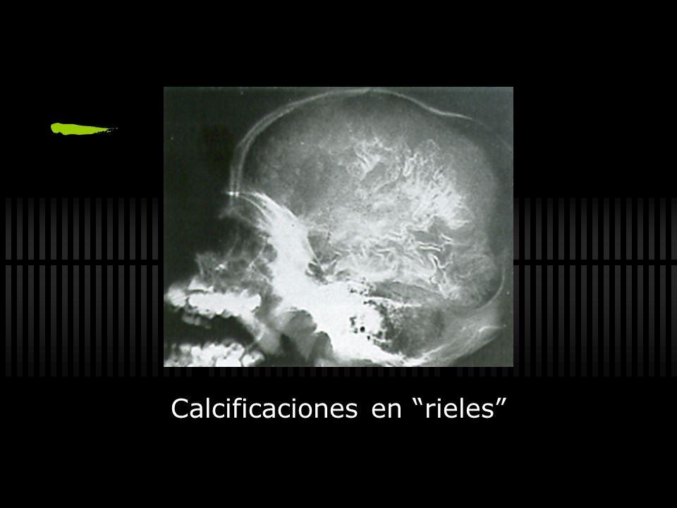 Calcificaciones en rieles