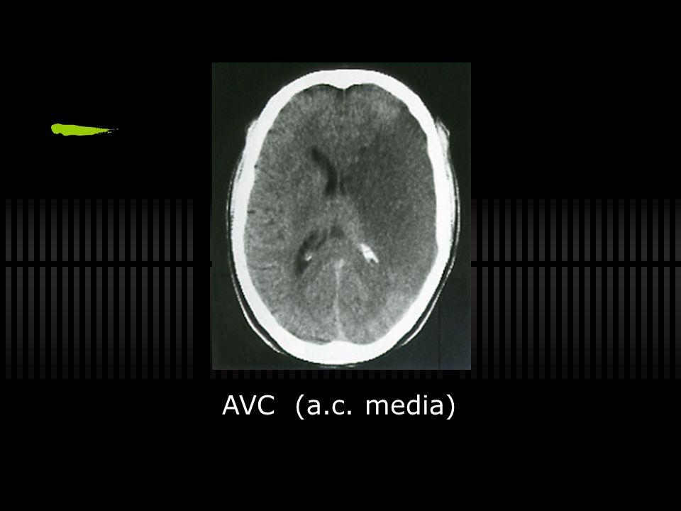 AVC (a.c. media)