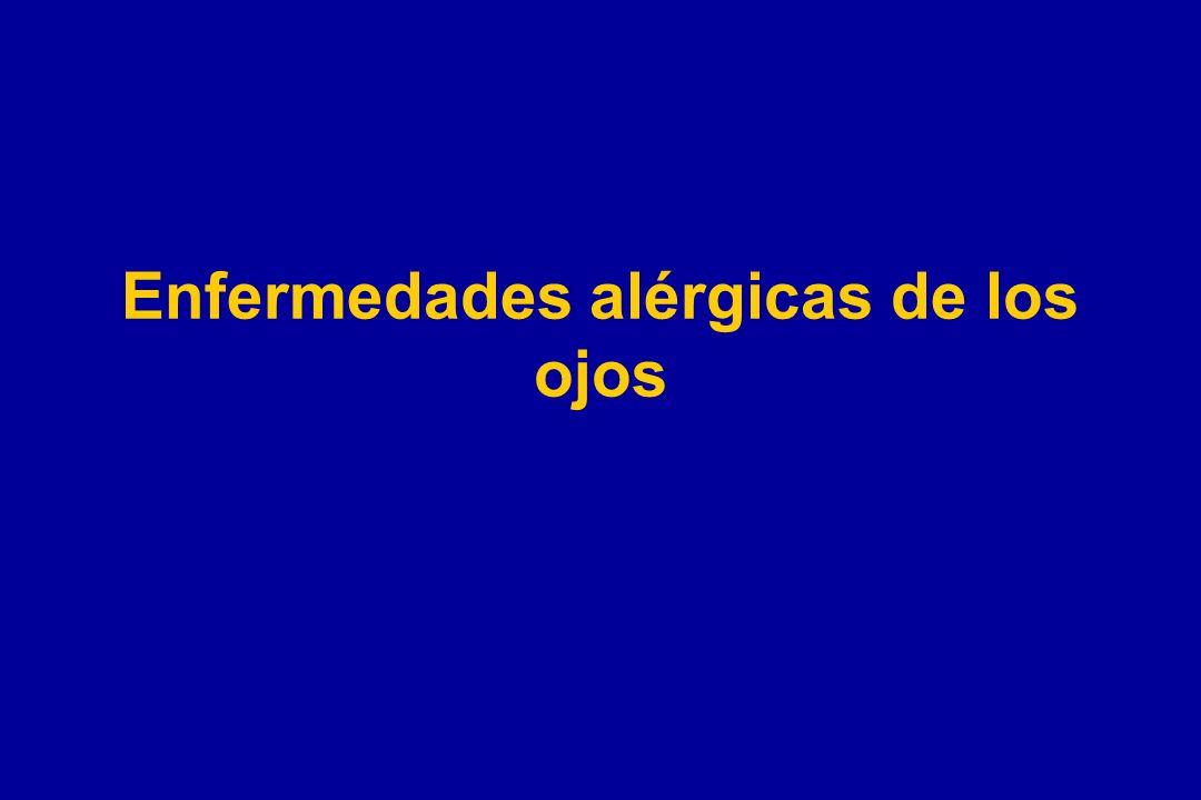 Enfermedades alérgicas de los ojos