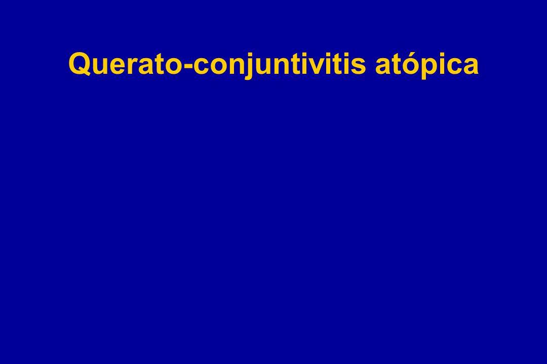 Querato-conjuntivitis atópica