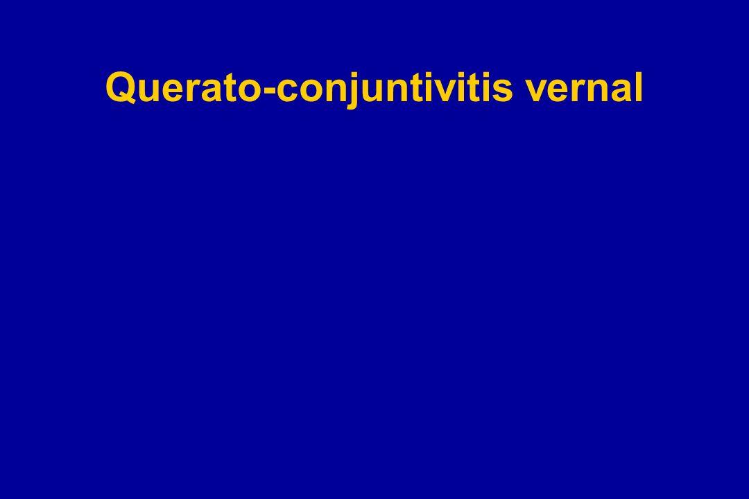 Querato-conjuntivitis vernal