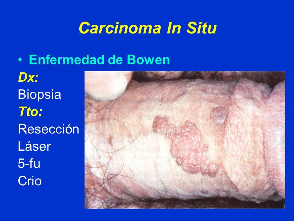 Carcinoma In Situ Enfermedad de Bowen Dx: Biopsia Tto: Resección Láser