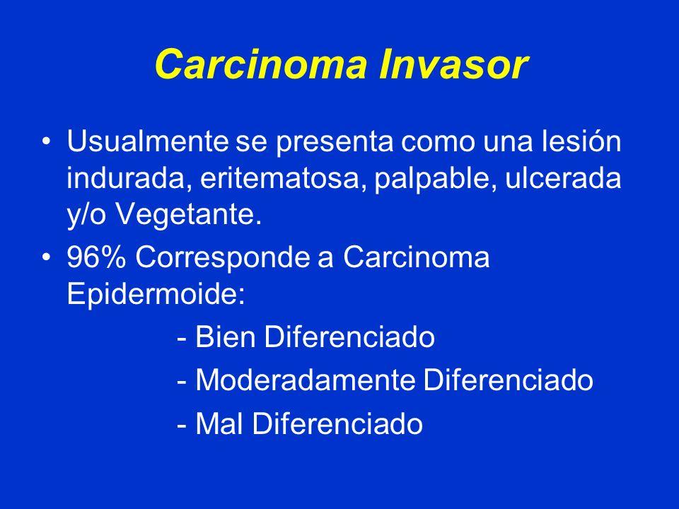 Carcinoma Invasor Usualmente se presenta como una lesión indurada, eritematosa, palpable, ulcerada y/o Vegetante.