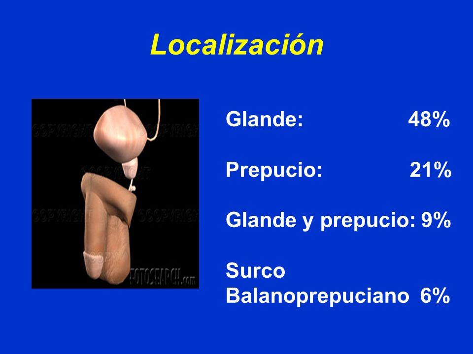 Localización Glande: 48% Prepucio: 21% Glande y prepucio: 9%