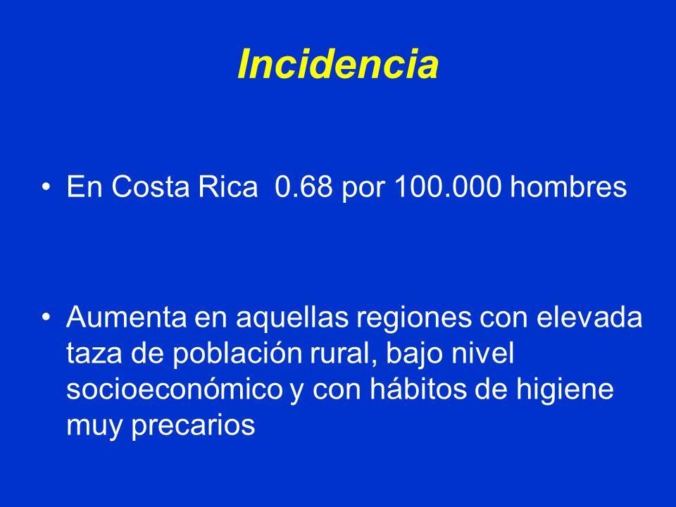 Incidencia En Costa Rica 0.68 por 100.000 hombres