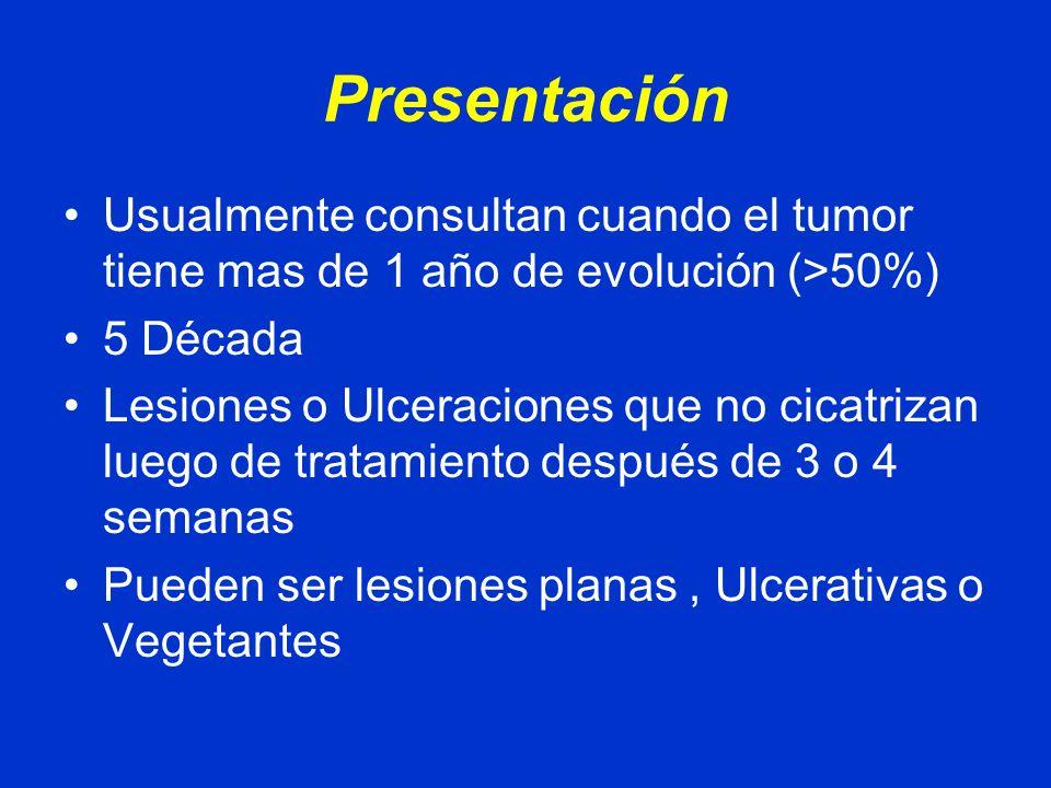 Presentación Usualmente consultan cuando el tumor tiene mas de 1 año de evolución (>50%) 5 Década.