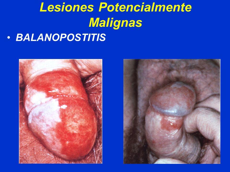 Lesiones Potencialmente Malignas