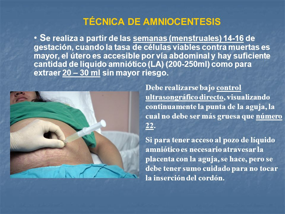 TÉCNICA DE AMNIOCENTESIS