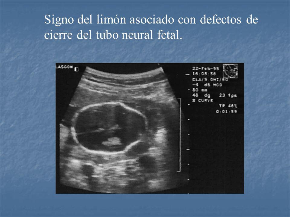 Signo del limón asociado con defectos de cierre del tubo neural fetal.