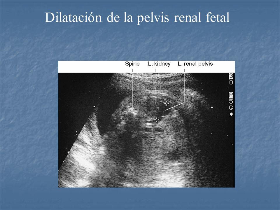 Dilatación de la pelvis renal fetal