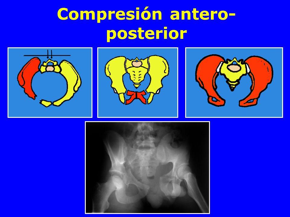 Compresión antero-posterior