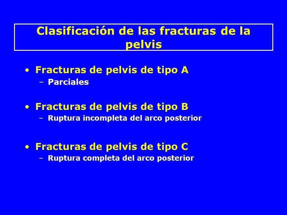 Clasificación de las fracturas de la pelvis