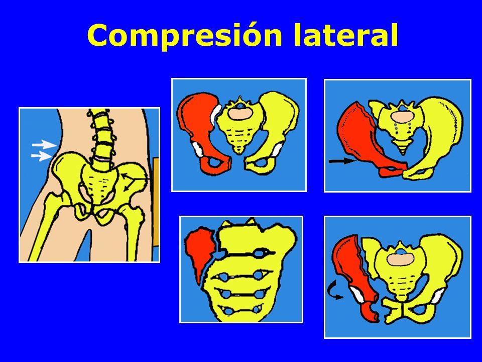 Compresión lateral