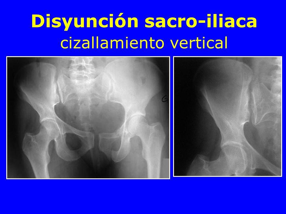 Disyunción sacro-iliaca cizallamiento vertical