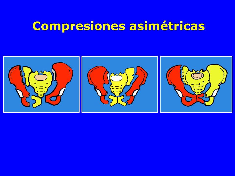 Compresiones asimétricas