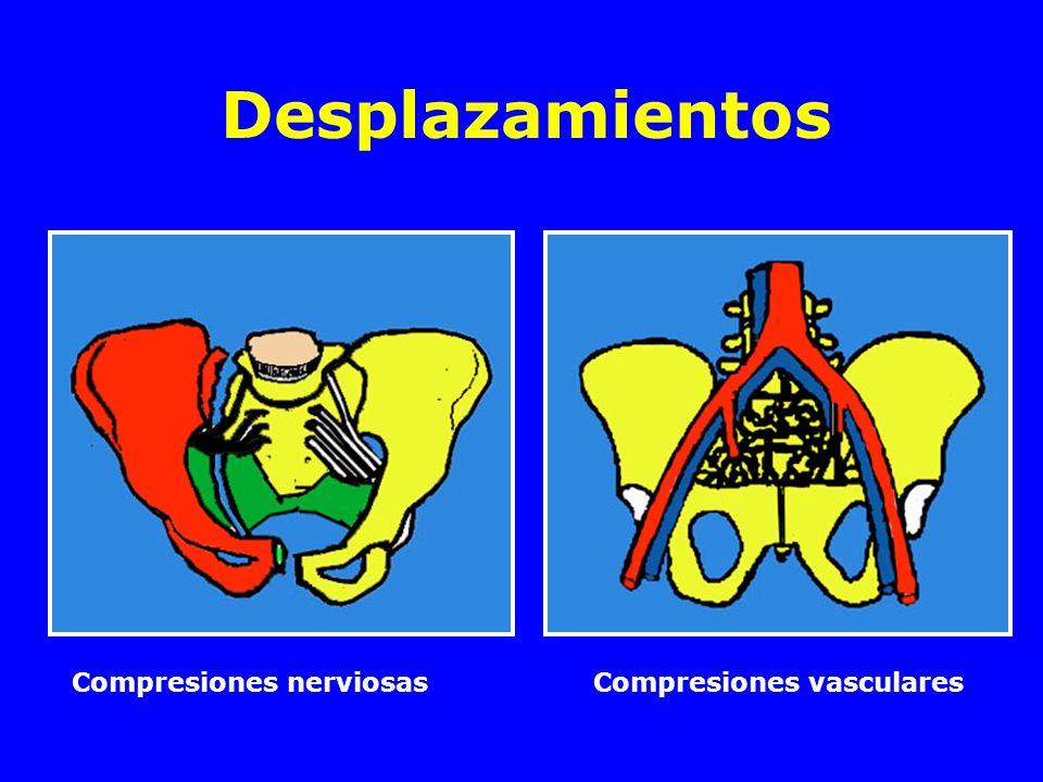 Desplazamientos Compresiones nerviosas Compresiones vasculares