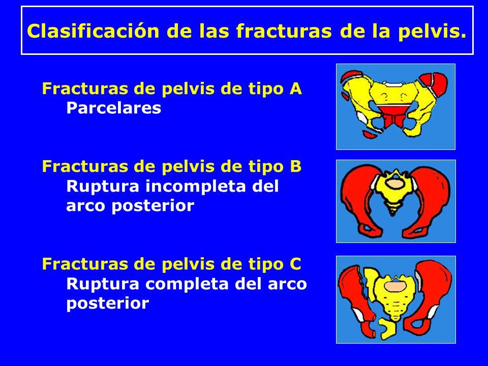 Clasificación de las fracturas de la pelvis.