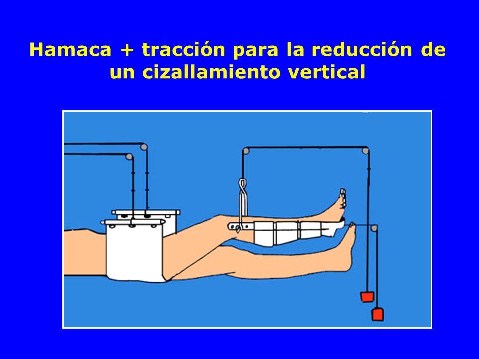 Hamaca + tracción para la reducción de un cizallamiento vertical