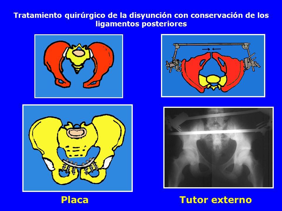 Tratamiento quirúrgico de la disyunción con conservación de los ligamentos posteriores