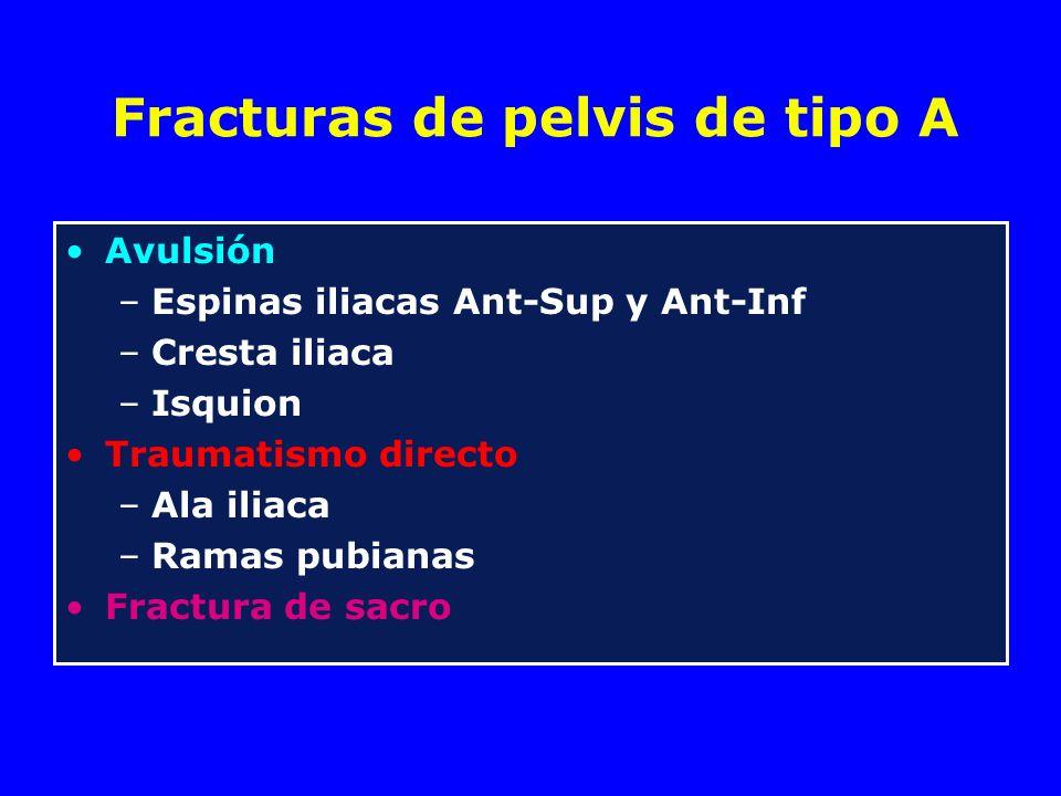 Fracturas de pelvis de tipo A