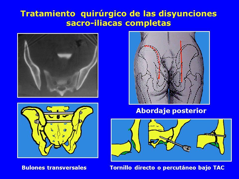 Tratamiento quirúrgico de las disyunciones sacro-iliacas completas