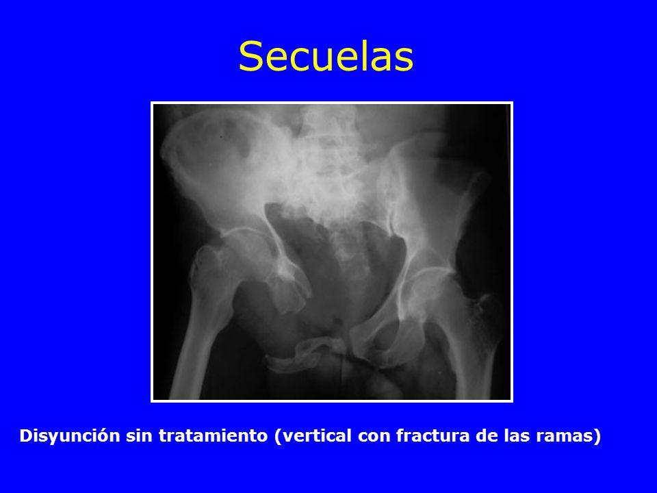 Secuelas Disyunción sin tratamiento (vertical con fractura de las ramas)