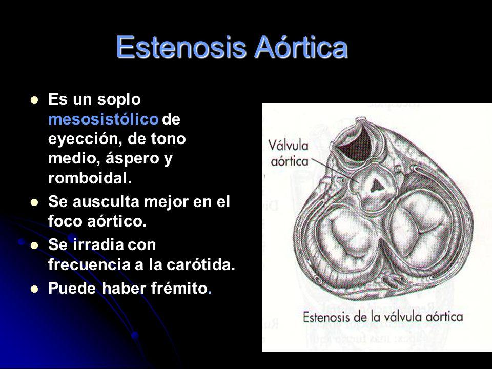 Estenosis Aórtica Es un soplo mesosistólico de eyección, de tono medio, áspero y romboidal. Se ausculta mejor en el foco aórtico.