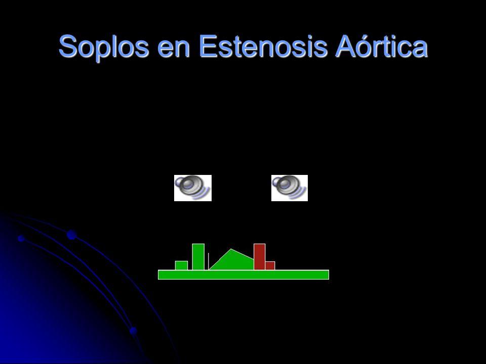 Soplos en Estenosis Aórtica