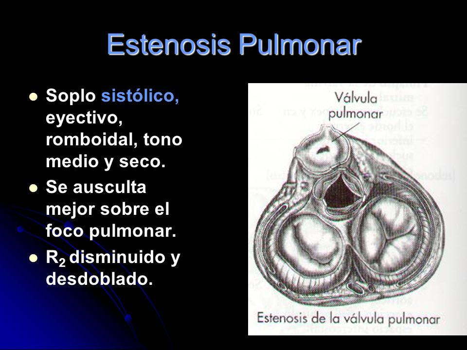 Estenosis Pulmonar Soplo sistólico, eyectivo, romboidal, tono medio y seco. Se ausculta mejor sobre el foco pulmonar.