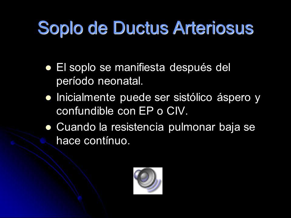 Soplo de Ductus Arteriosus