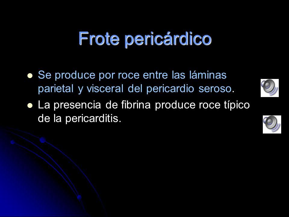 Frote pericárdico Se produce por roce entre las láminas parietal y visceral del pericardio seroso.