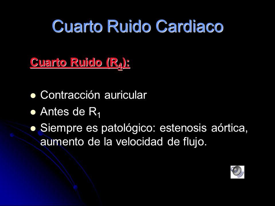 Cuarto Ruido Cardiaco Cuarto Ruido (R4): Contracción auricular