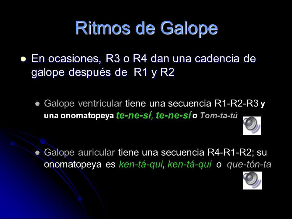 Ritmos de Galope En ocasiones, R3 o R4 dan una cadencia de galope después de R1 y R2.