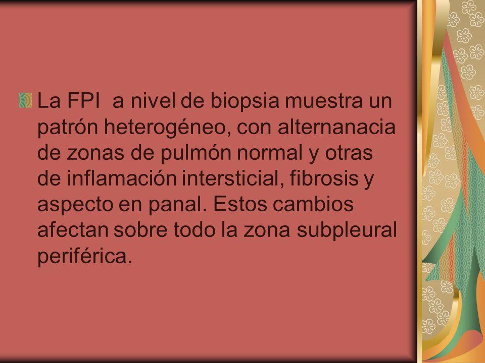 La FPI a nivel de biopsia muestra un patrón heterogéneo, con alternanacia de zonas de pulmón normal y otras de inflamación intersticial, fibrosis y aspecto en panal.