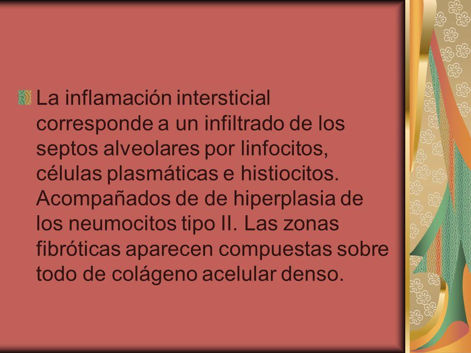 La inflamación intersticial corresponde a un infiltrado de los septos alveolares por linfocitos, células plasmáticas e histiocitos.