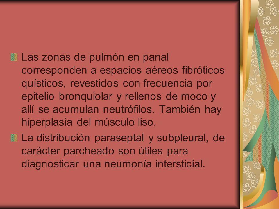 Las zonas de pulmón en panal corresponden a espacios aéreos fibróticos quísticos, revestidos con frecuencia por epitelio bronquiolar y rellenos de moco y allí se acumulan neutrófilos. También hay hiperplasia del músculo liso.