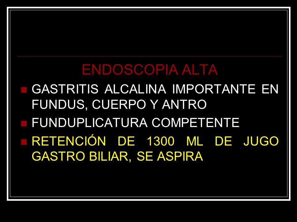ENDOSCOPIA ALTAGASTRITIS ALCALINA IMPORTANTE EN FUNDUS, CUERPO Y ANTRO. FUNDUPLICATURA COMPETENTE.