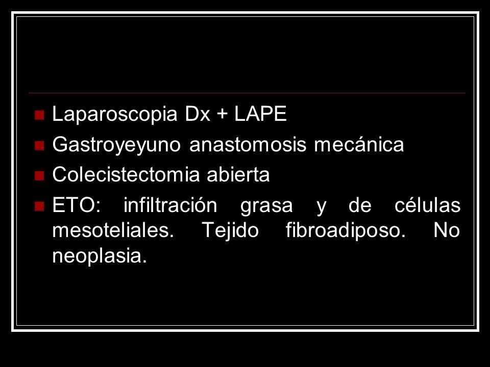 Laparoscopia Dx + LAPE Gastroyeyuno anastomosis mecánica. Colecistectomia abierta.