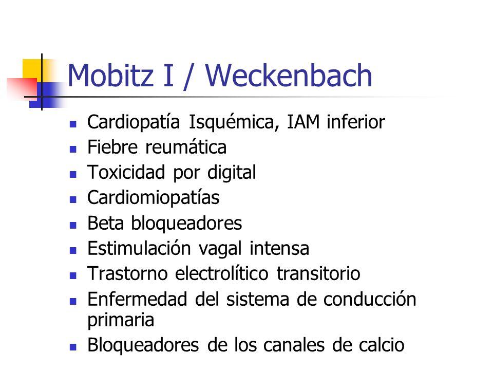 Mobitz I / Weckenbach Cardiopatía Isquémica, IAM inferior