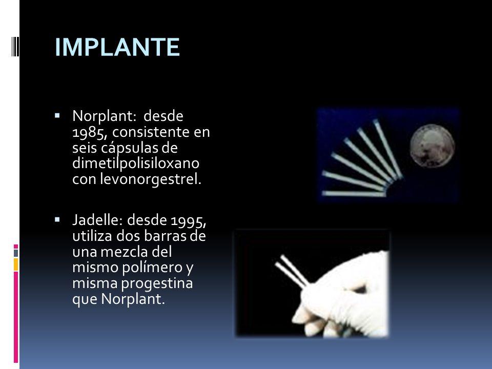 IMPLANTE Norplant: desde 1985, consistente en seis cápsulas de dimetilpolisiloxano con levonorgestrel.