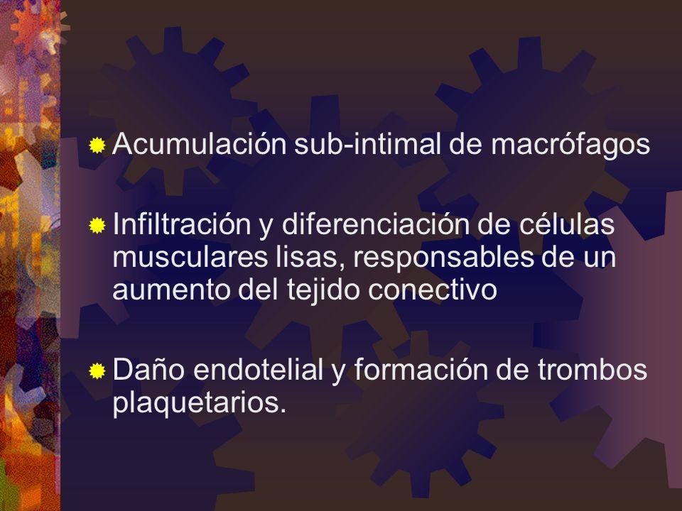 Acumulación sub-intimal de macrófagos