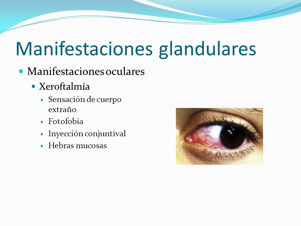 Manifestaciones glandulares