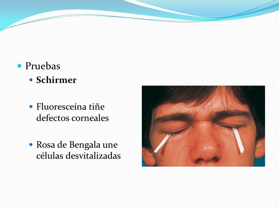 Pruebas Schirmer Fluoresceína tiñe defectos corneales