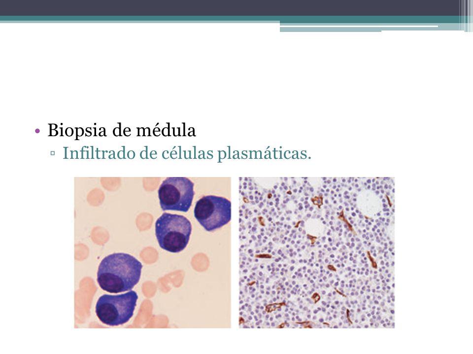 Biopsia de médula Infiltrado de células plasmáticas.