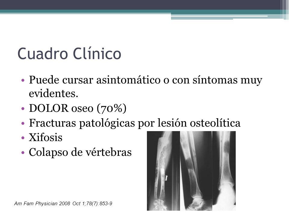 Cuadro Clínico Puede cursar asintomático o con síntomas muy evidentes.