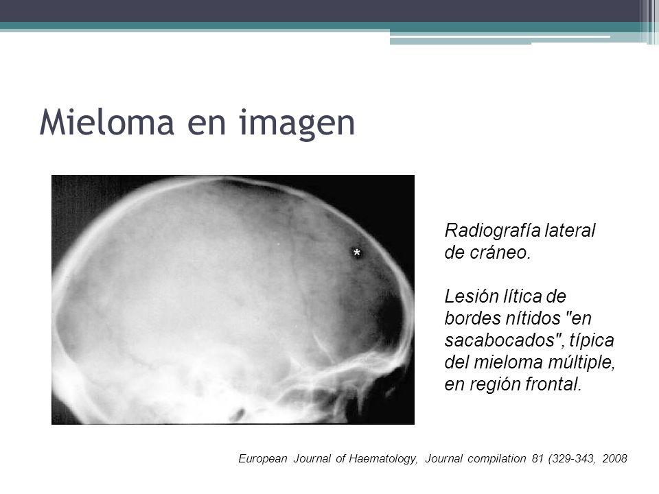 Mieloma en imagen Radiografía lateral de cráneo.