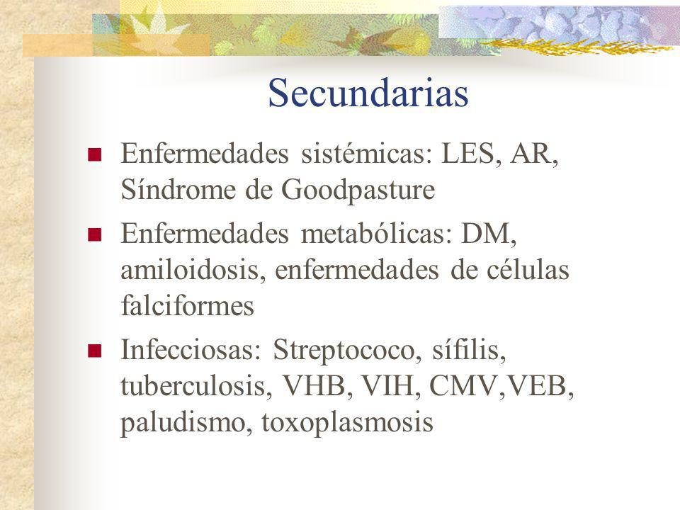 Secundarias Enfermedades sistémicas: LES, AR, Síndrome de Goodpasture