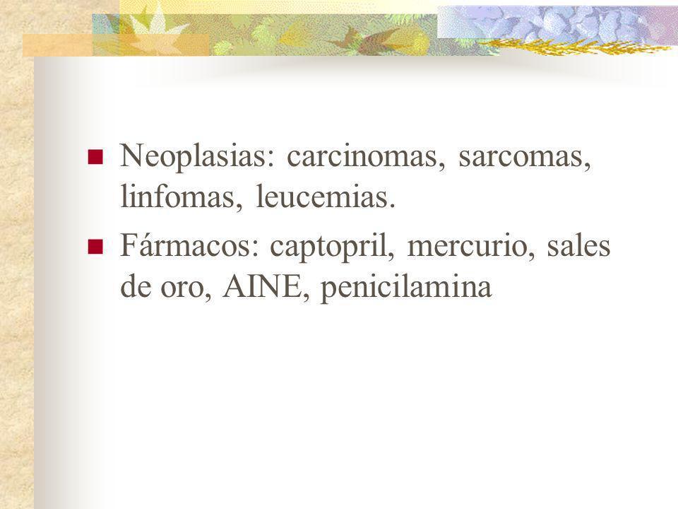 Neoplasias: carcinomas, sarcomas, linfomas, leucemias.